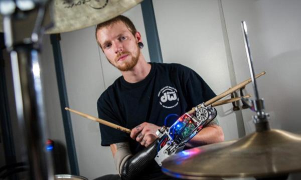 Deze man verloor een arm, maar met zijn robot-prothese kan hij beter drummen dan voorheen