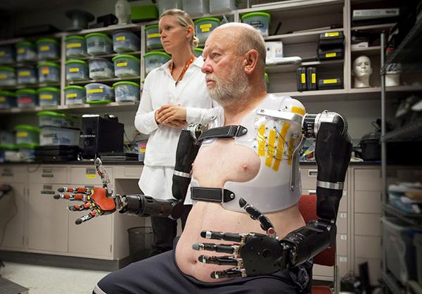 Hij mist twee armen, maar dankzij deze geavanceerde prothese duurt dat niet lang meer