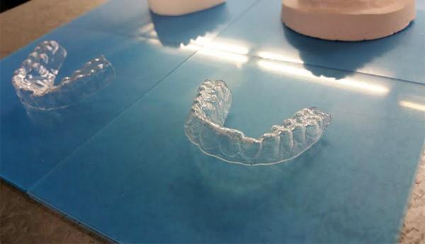 Student gebruikt een 3D-printer om zijn eigen beugel te maken