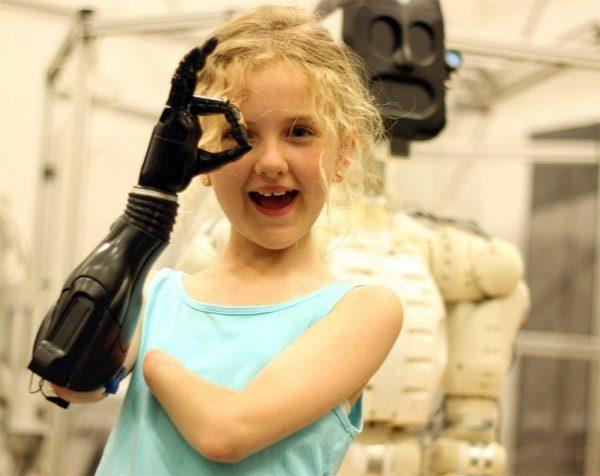 Open Bionics maakt protheses uit de 3D-printer betaalbaar