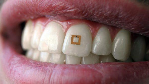 Deze sensor voor in je mond meet wat je eet